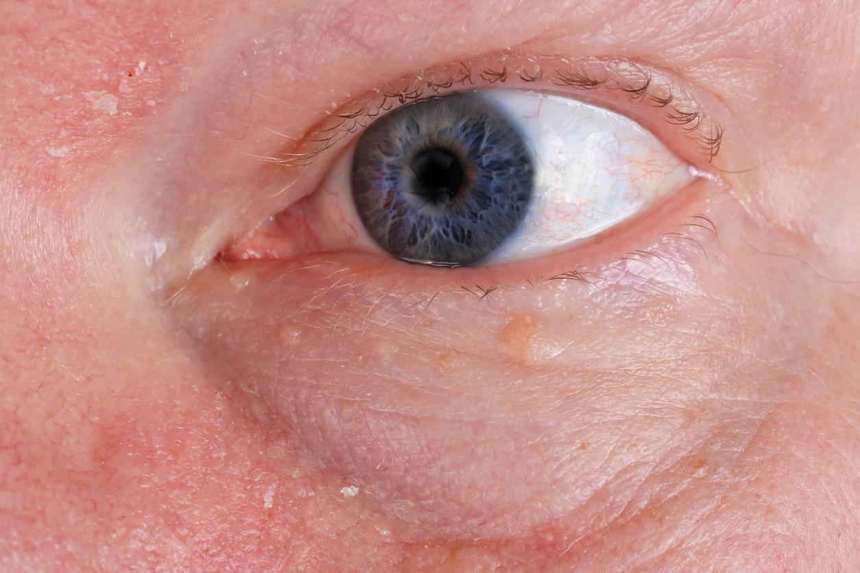 Primer plano en un ojo con un grano en el párpado inferior