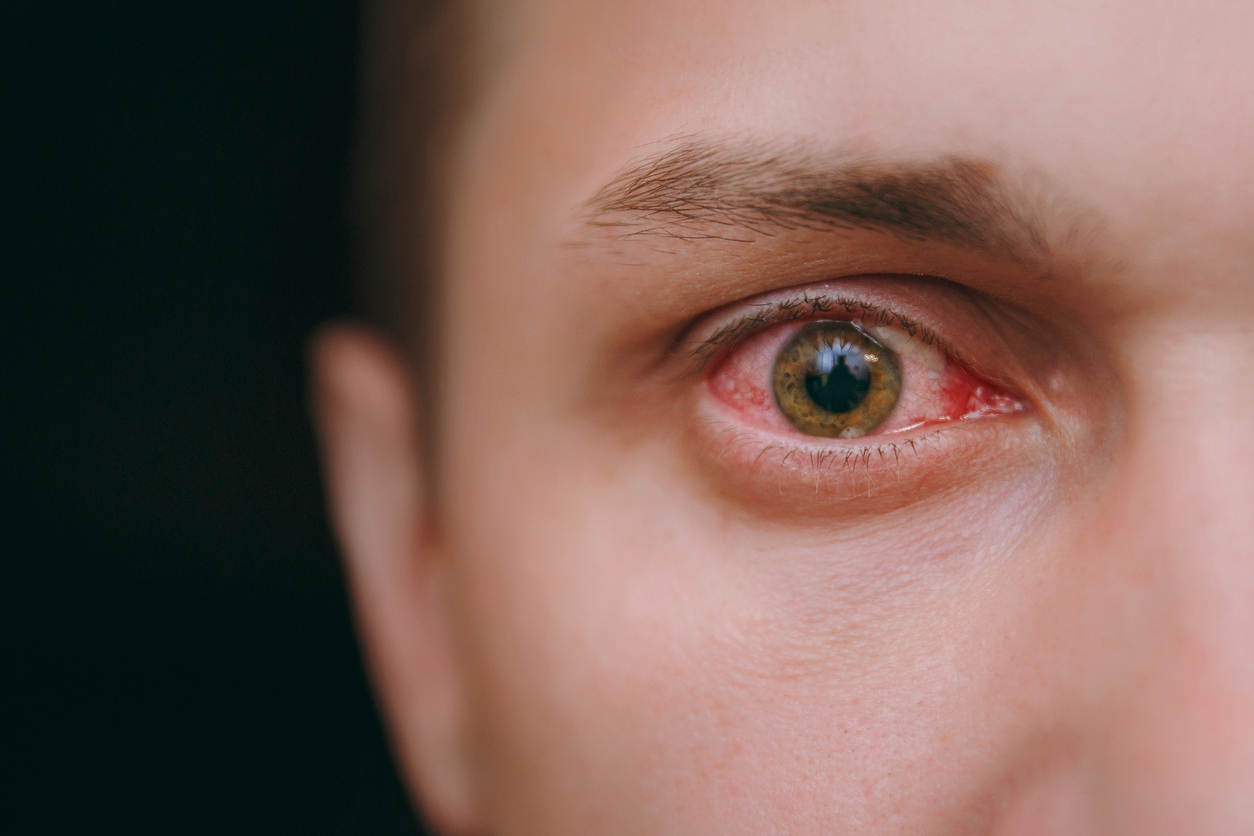 Primer plano de ojo con manchas rojas