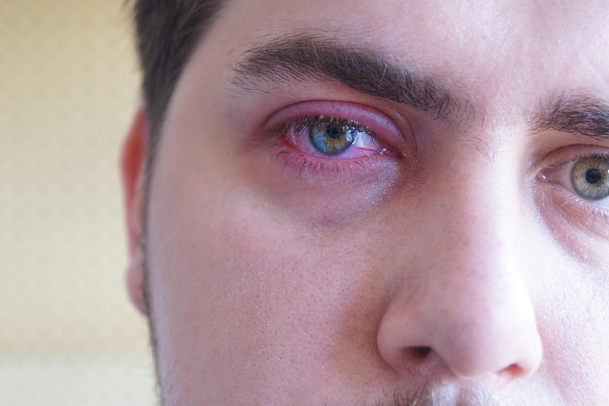 Hombre con los ojos verdes con un bulto en el párpado