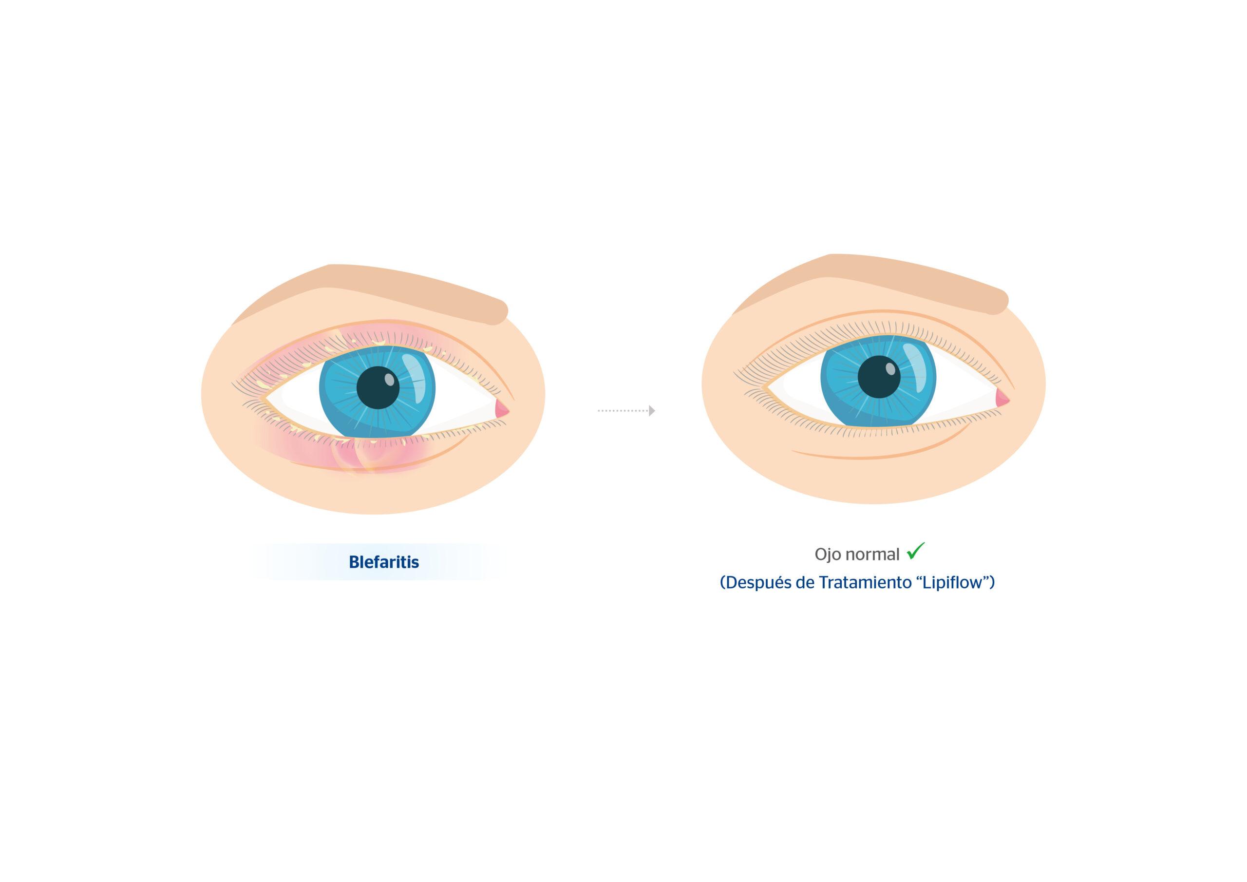 Antes y después de blefaritis