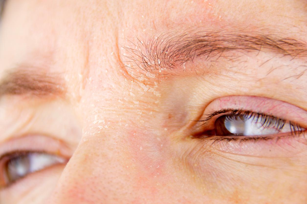 Hombre con dermatitis en la cara