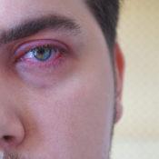 Ojo inflamado: ¿a qué se debe?