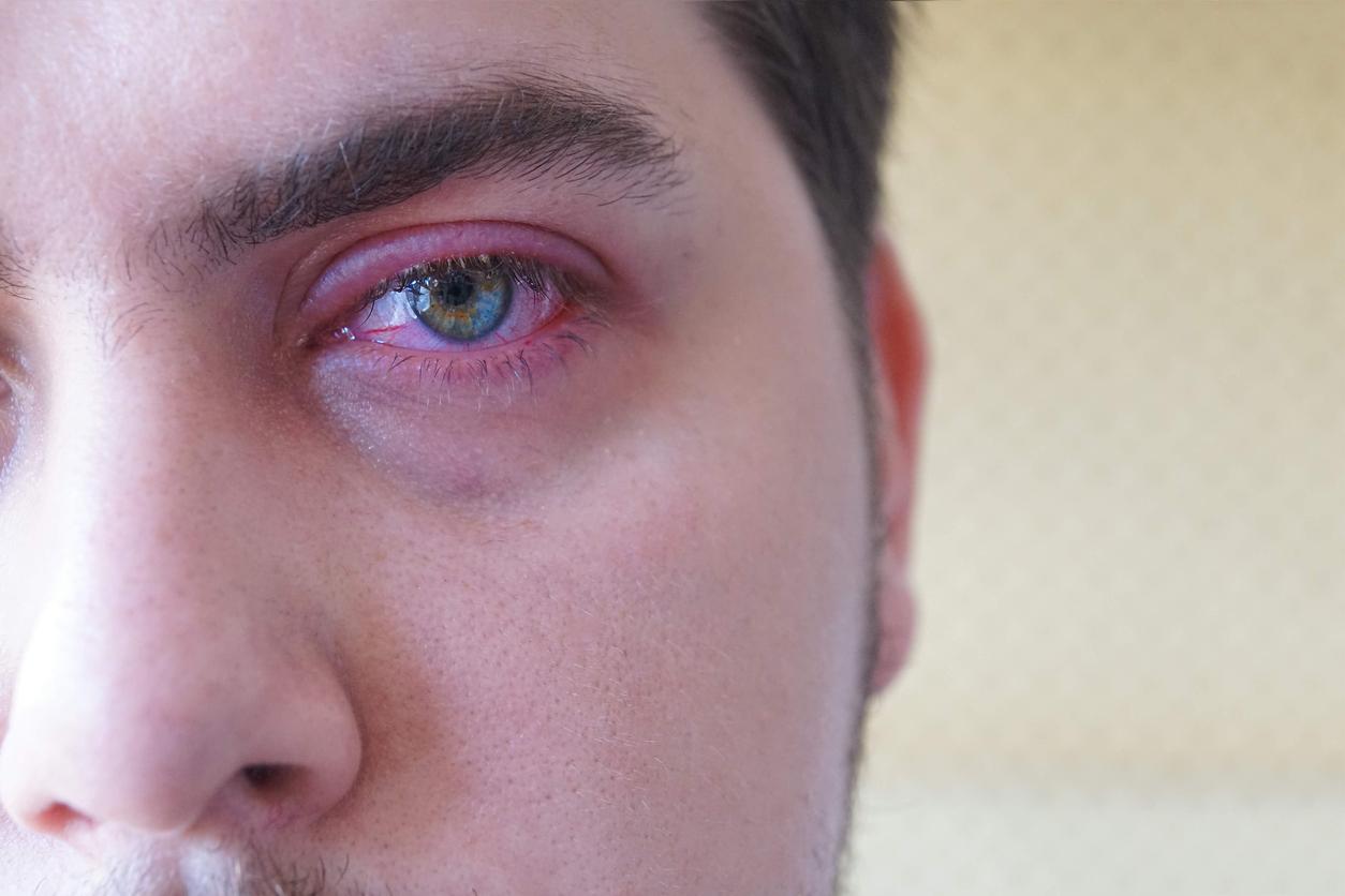 Joven con el ojo inflamado y rojo