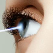 Operación láser de miopía: cómo se hace