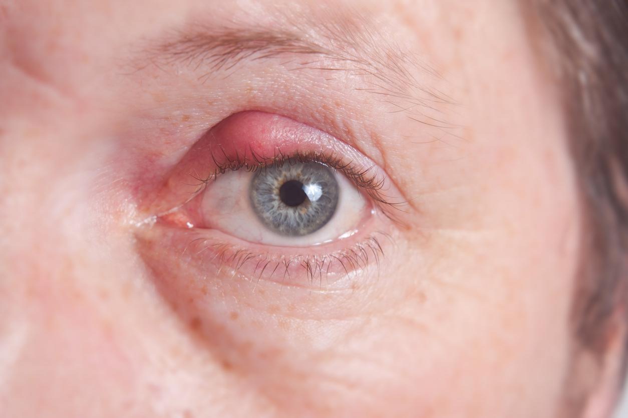 Primer plano de un ojo con el párpado inflamado