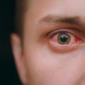Mocos en los ojos: ¿qué pueden indicar?