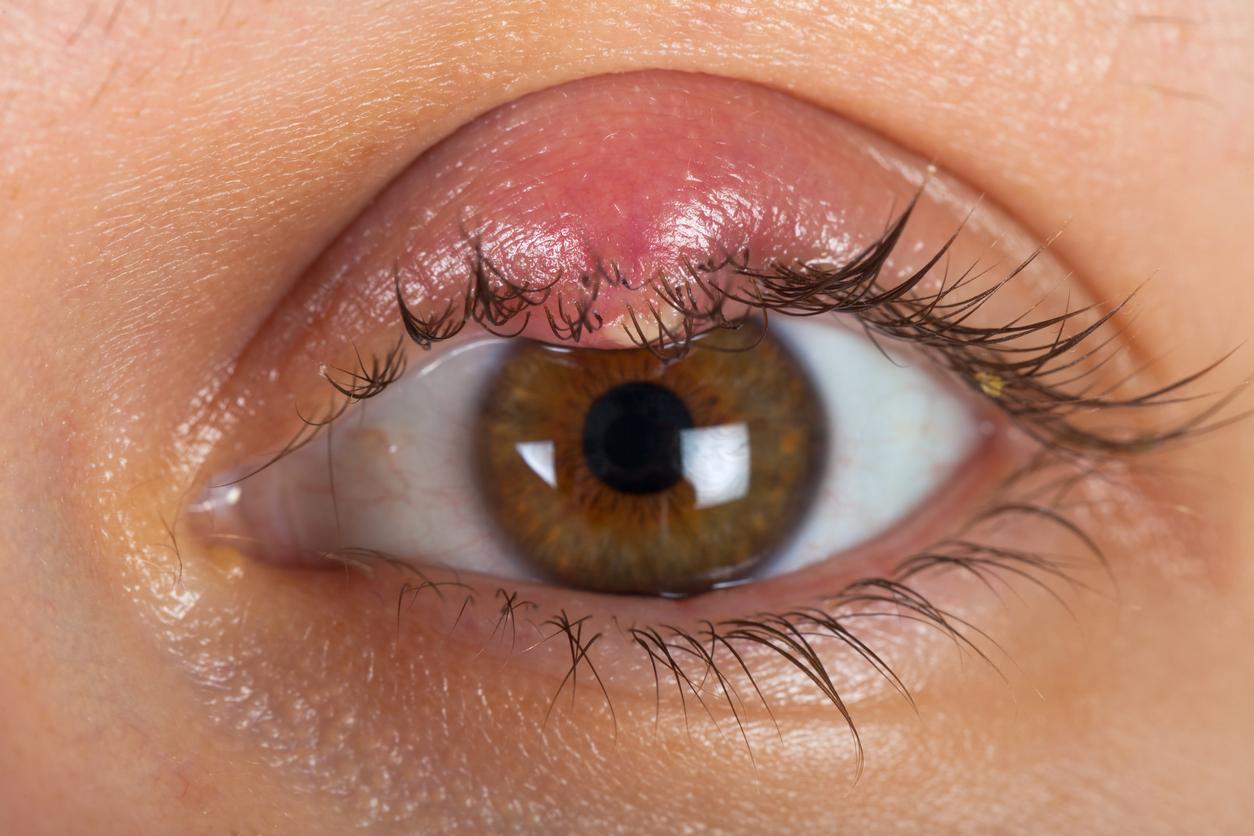 Orzuelo en ojo marrón