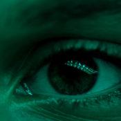 Mancha marrón en el ojo: ¿qué significa?