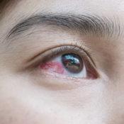Derrame en el ojo: precauciones al usar un remedio casero