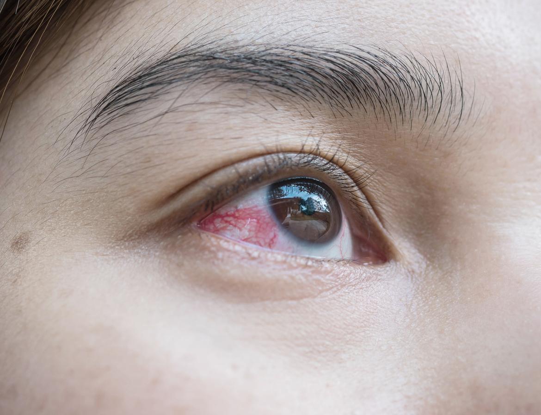 dolor en ojo derecho remedios caseros