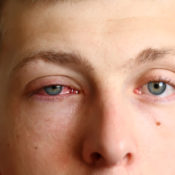 Conjuntivitis papilar gigante: causas y tratamiento