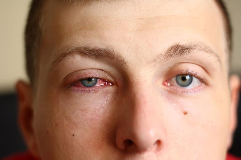 Hombre con ojo rojo