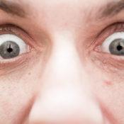 Ojos saltones o exoftalmia: síntomas y tratamiento
