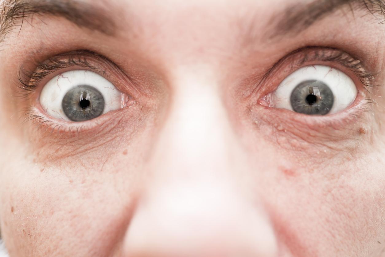 Hombre con los ojos muy abiertos