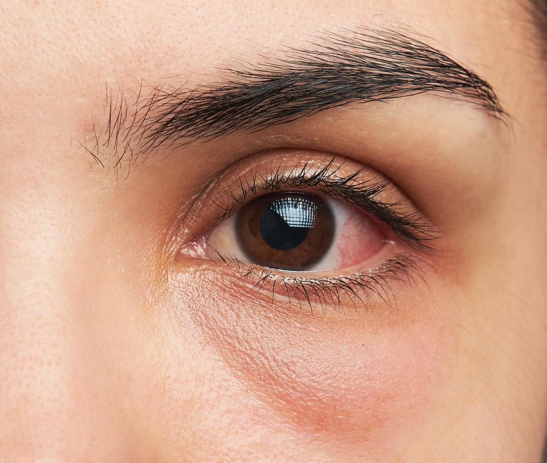 Ojo marrón con mancha roja