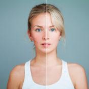 Rosácea ocular: síntomas, causas y posibles tratamientos