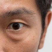 Glándulas de Meibomio: ¿qué ocurre si se obstruyen?