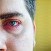 Dacriocistitis: causas, síntomas y tratamiento