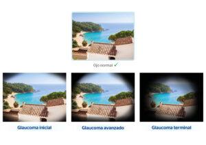 Cómo se ve con glaucoma