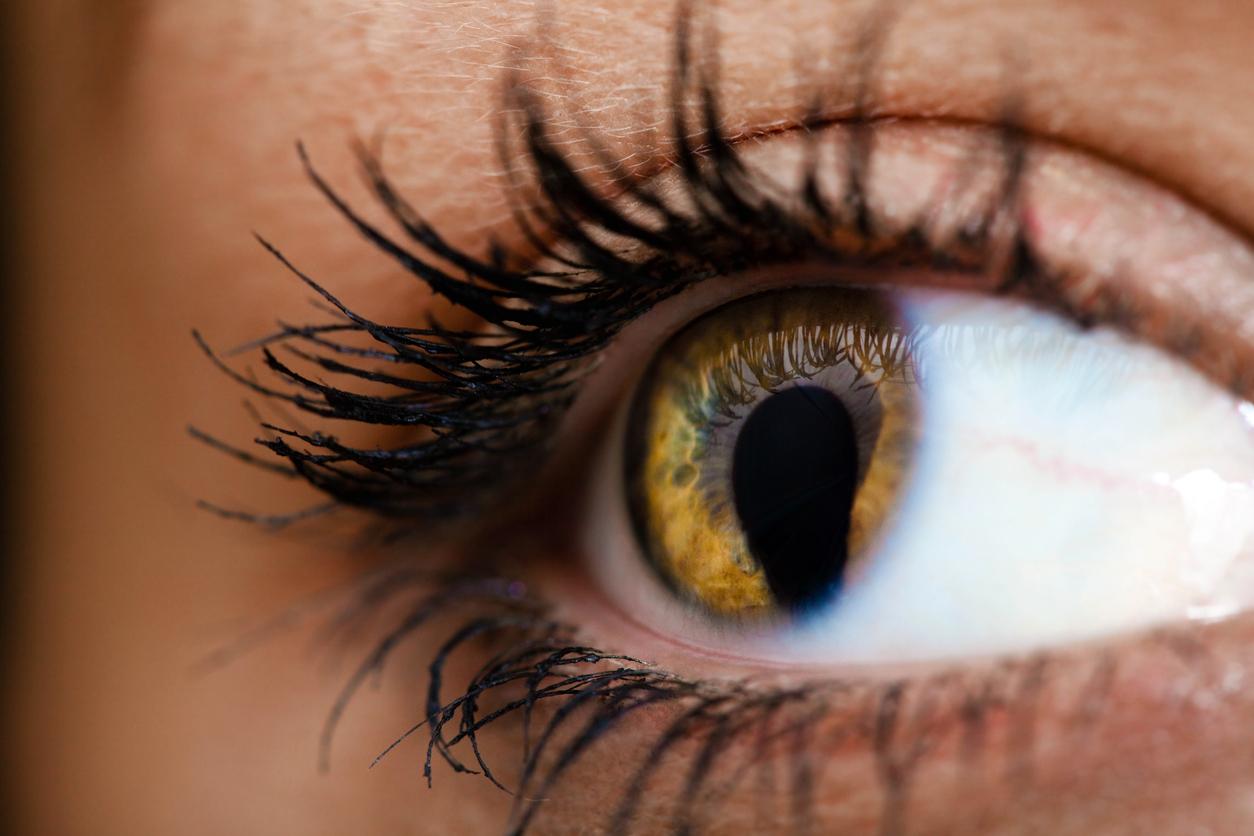 Primer plano ojo mujer con un defecto en el iris