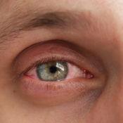 Inflamación de la conjuntiva: prevención, síntomas y tratamiento