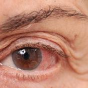 Ardor en los ojos: causas más comunes