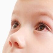 Retinoblastoma: qué es, causas y tratamiento