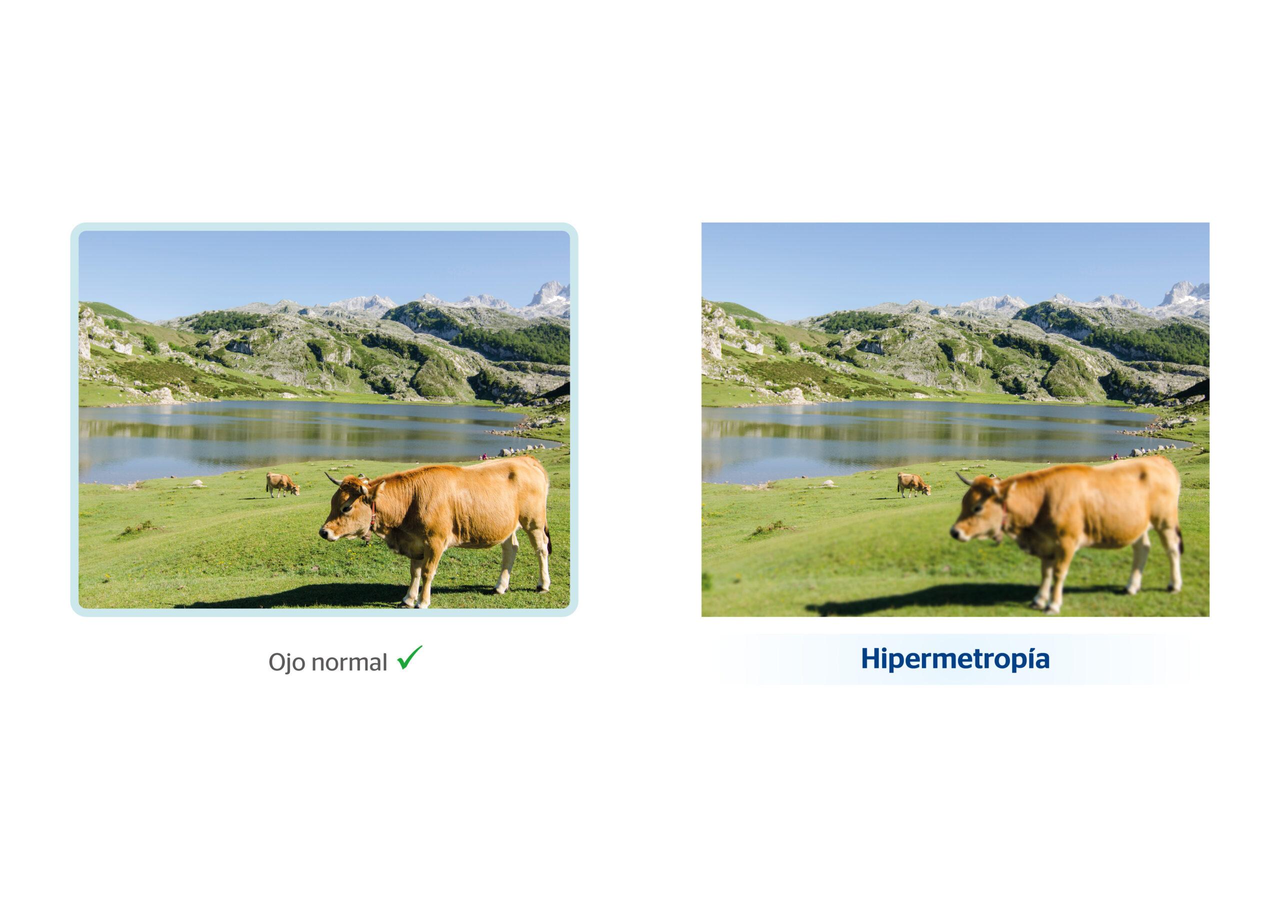 Cómo se ve con hipermetropía