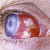 Qué es la hemorragia vítrea: síntomas, causas y tratamiento