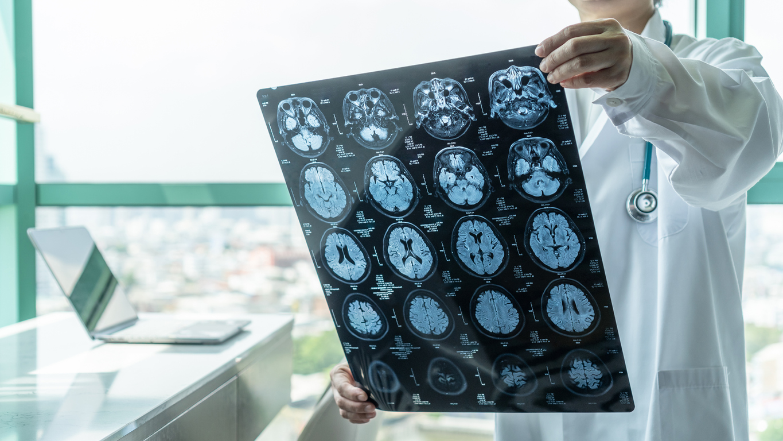 Médico revisando los resultados de unas pruebas de imagen