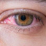 Herpes ocular o queratitis herpética: qué es y cuáles son los síntomas principales