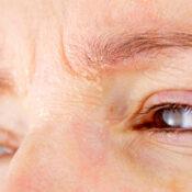 Psoriasis en los ojos: síntomas y tratamiento