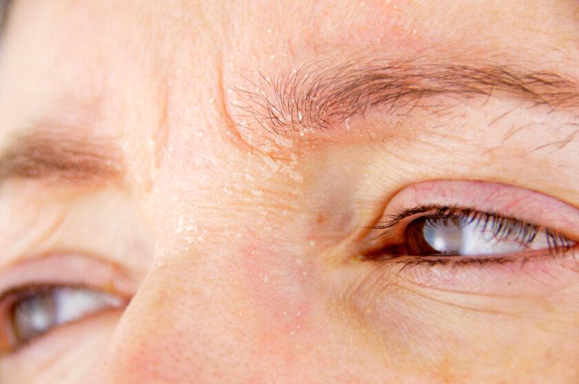 Primer plano de ojos mirando hacia un lado