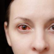 ¿Qué hacer ante una conjuntivitis alérgica?