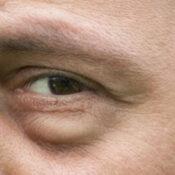 Párpados y ojos hinchados: causas, tratamiento y prevención de la inflamación