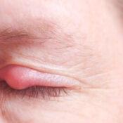 Orzuelo: qué es y cuáles son los remedios para su tratamiento