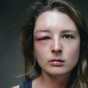 Párpado hinchado: causas y tratamientos habituales