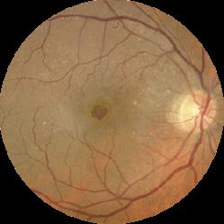 Fondo de ojo con agujero macular