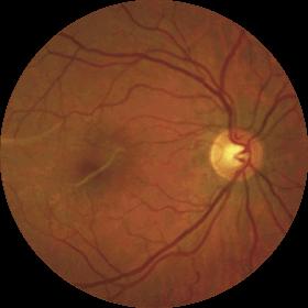 Fondo de ojo con membrana epirretiniana